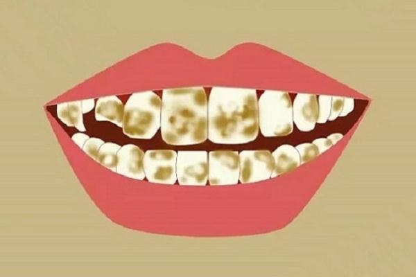 牙黄会口臭吗 牙黄可以洗白吗