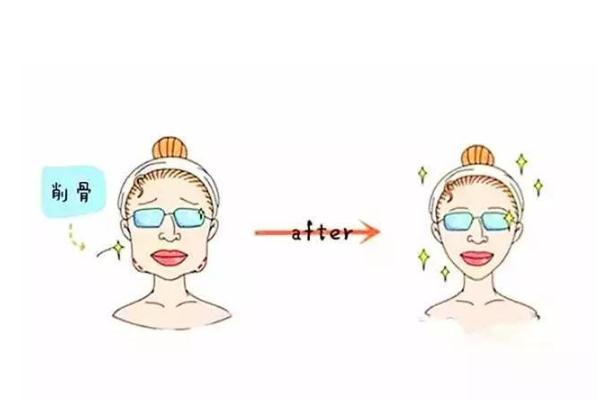 削骨瘦脸风险大吗 削骨瘦脸多久可以恢复