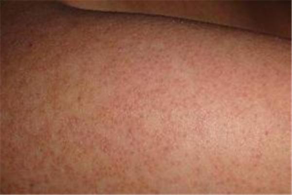 鸡皮肤要补充什么维生素 鸡皮肤吃什么能改善