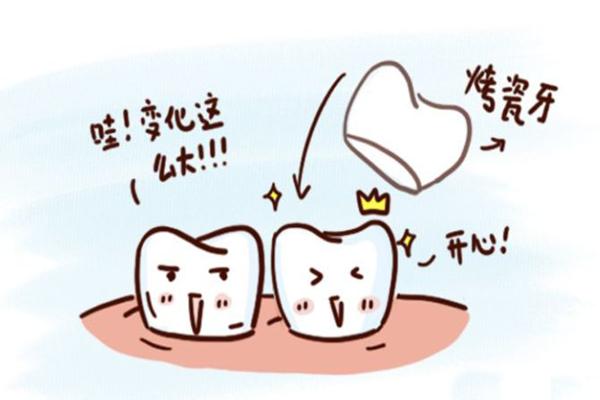 烤瓷牙是不是假牙 烤瓷牙是不是金属